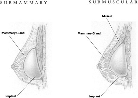 Submammary vs Submuscular